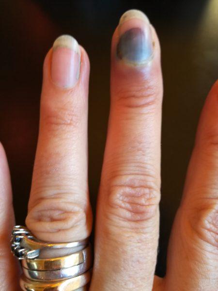 blauer nagel